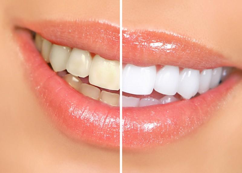 Teeth Whitening  Horseshoe Bay, TX